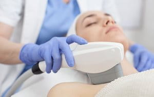 Laser and light therapy for pimple marks