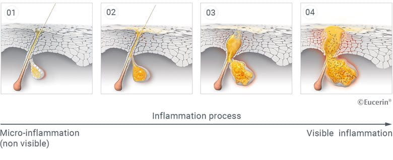 Micro-inflammation in the skin