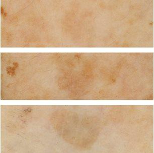 Como librar de la pigmentación de la persona