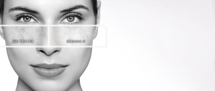 La pigmentación después del daño de la piel